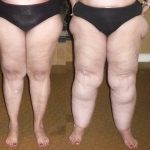 photo of 4 pairs of legs in various weights