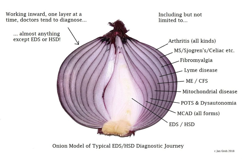 image of a vertically sliced red onion with a label pointing to each onion layer going into the center